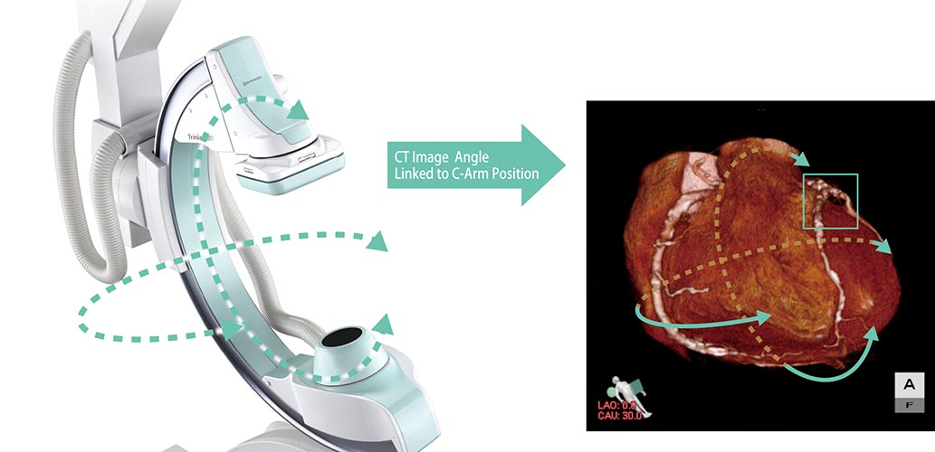 angiograf digital trinias mix package shimadzu imagini clinice