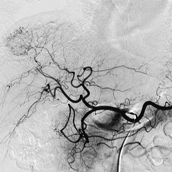 imagini clinice sistem radiologie cu stiching sonialvision g4