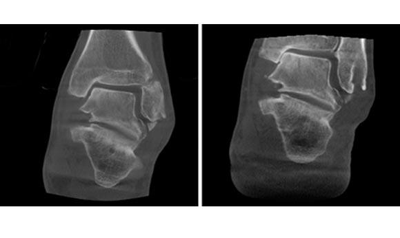 computer tomograf planmed verity imagini clinice